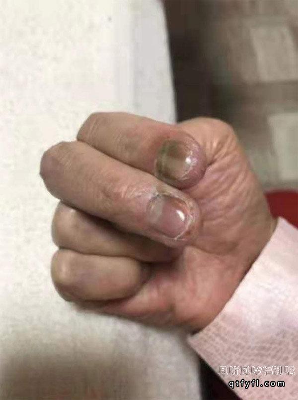 加藤鹰金手指