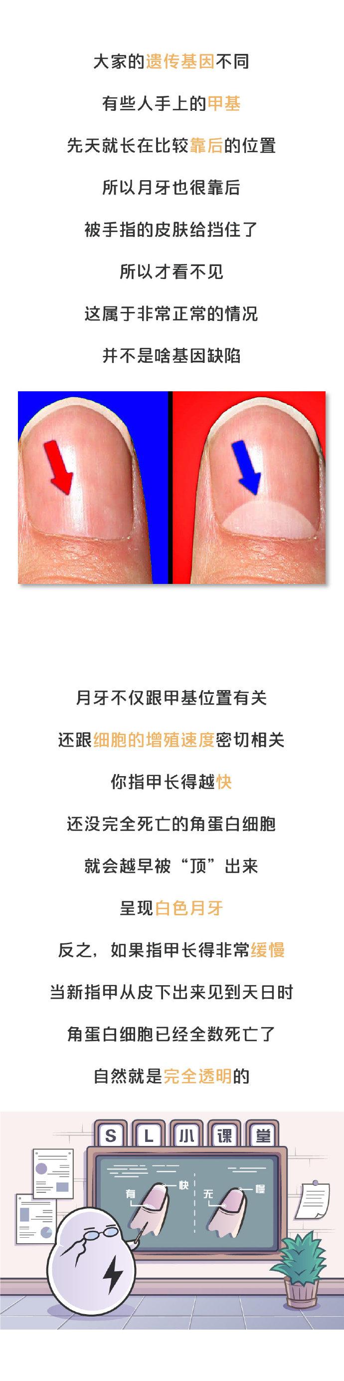 """指甲上""""月牙""""越多才越健康?看了看手指,我吓晕了 涨姿势 第5张"""