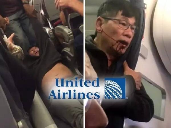 美帝太可怕了,美联航强制拖拽乘客下机,满脸是血